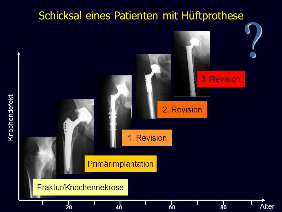 Fate of a THA-Patient Schicksal eines Patienten mit Hüftprothese