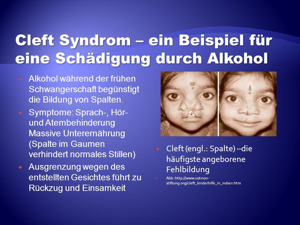 Cleft Syndrom – ein Beispiel für eine Schädigung durch Alkohol