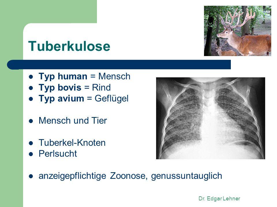 Tuberkulose Typ human = Mensch Typ bovis = Rind Typ avium = Geflügel