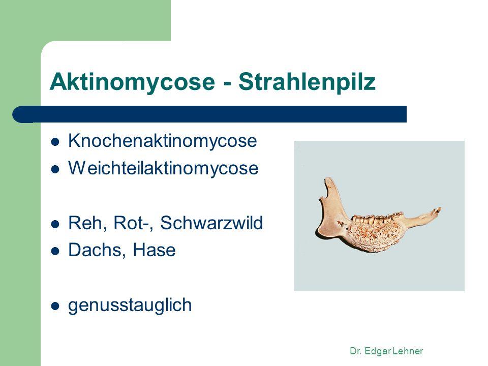 Aktinomycose - Strahlenpilz