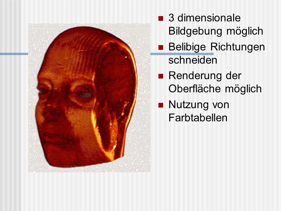 3 dimensionale Bildgebung möglich