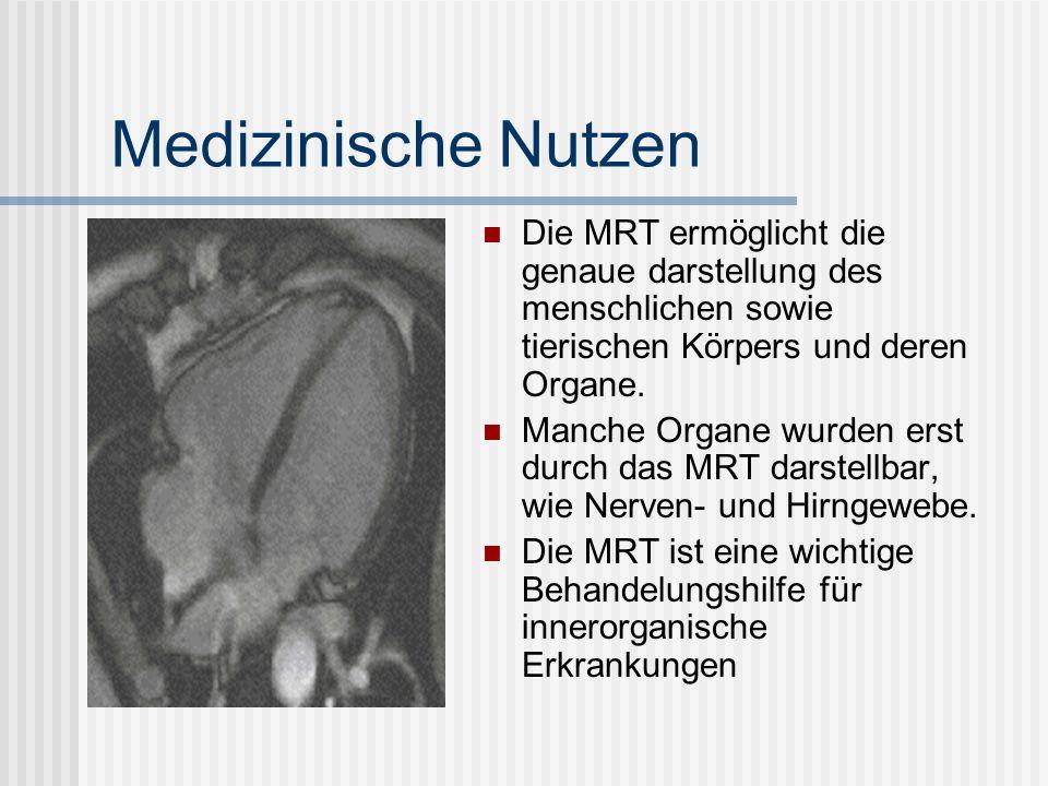 Medizinische Nutzen Die MRT ermöglicht die genaue darstellung des menschlichen sowie tierischen Körpers und deren Organe.