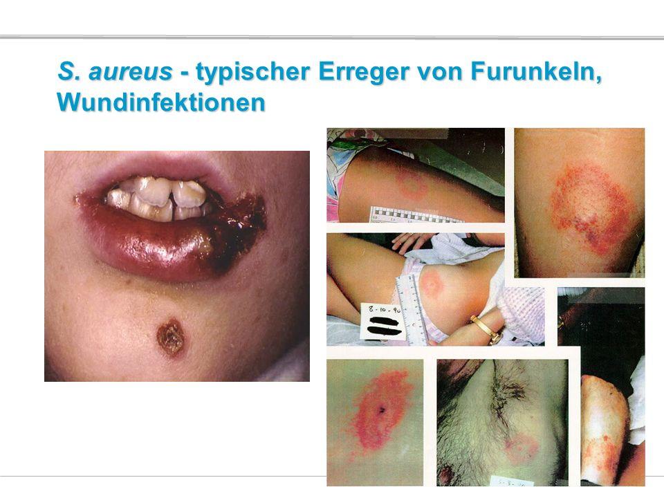 S. aureus - typischer Erreger von Furunkeln, Wundinfektionen
