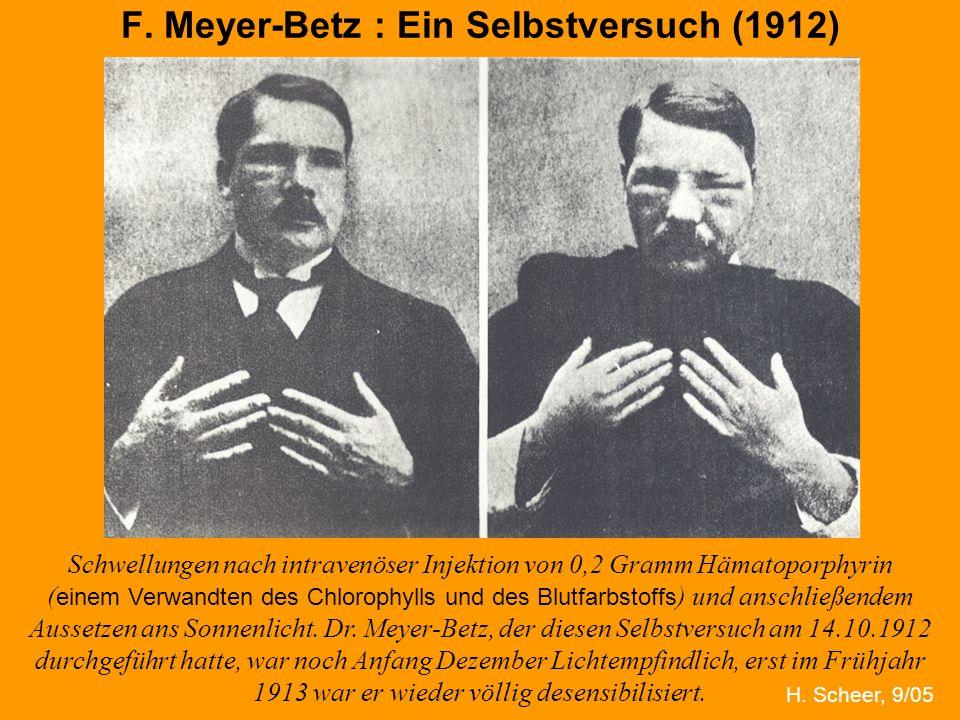 F. Meyer-Betz : Ein Selbstversuch (1912)