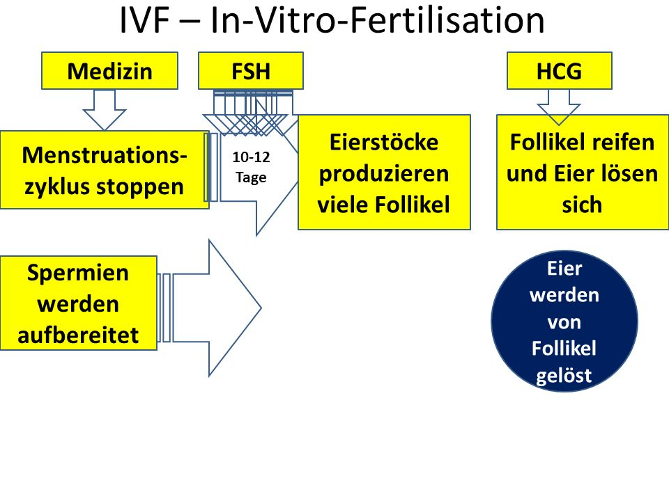 IVF – In-Vitro-Fertilisation