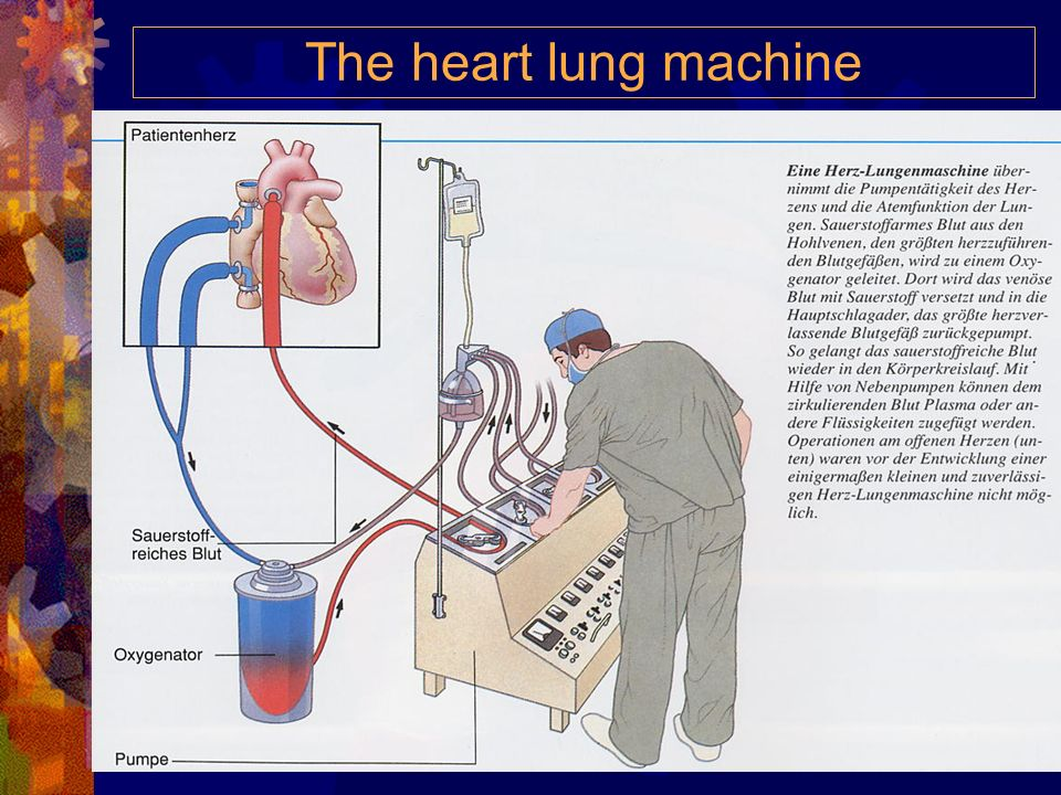The heart lung machine