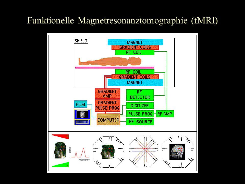 Funktionelle Magnetresonanztomographie (fMRI)