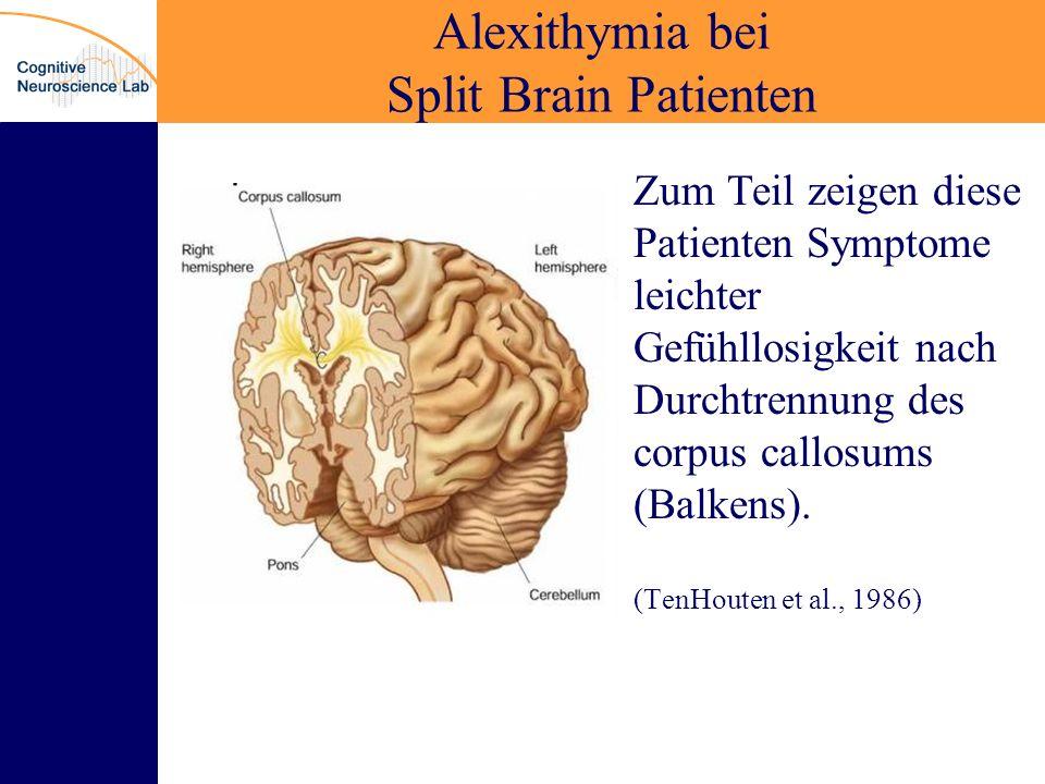 Alexithymia bei Split Brain Patienten