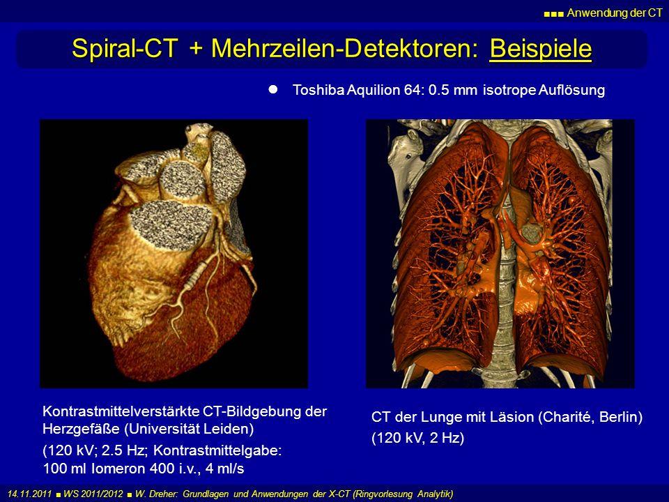 Spiral-CT + Mehrzeilen-Detektoren: Beispiele