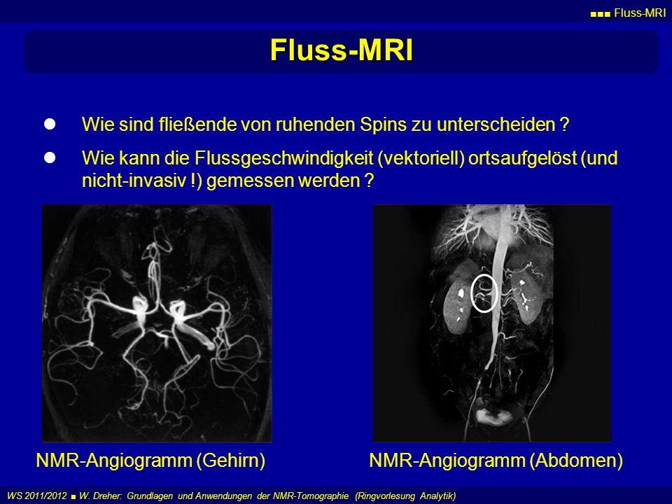 Fluss-MRI Wie sind fließende von ruhenden Spins zu unterscheiden