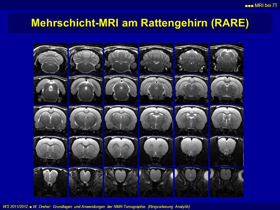 Mehrschicht-MRI am Rattengehirn (RARE)