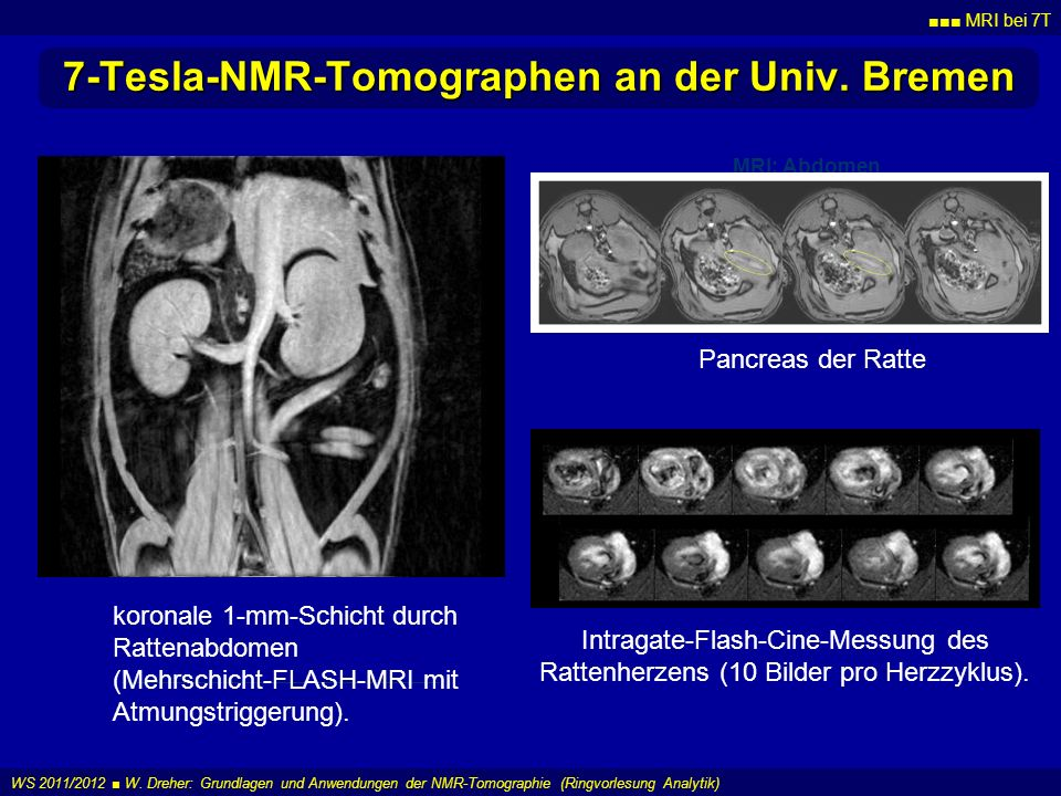7-Tesla-NMR-Tomographen an der Univ. Bremen