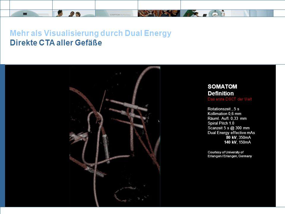 Mehr als Visualisierung durch Dual Energy Direkte CTA aller Gefäße