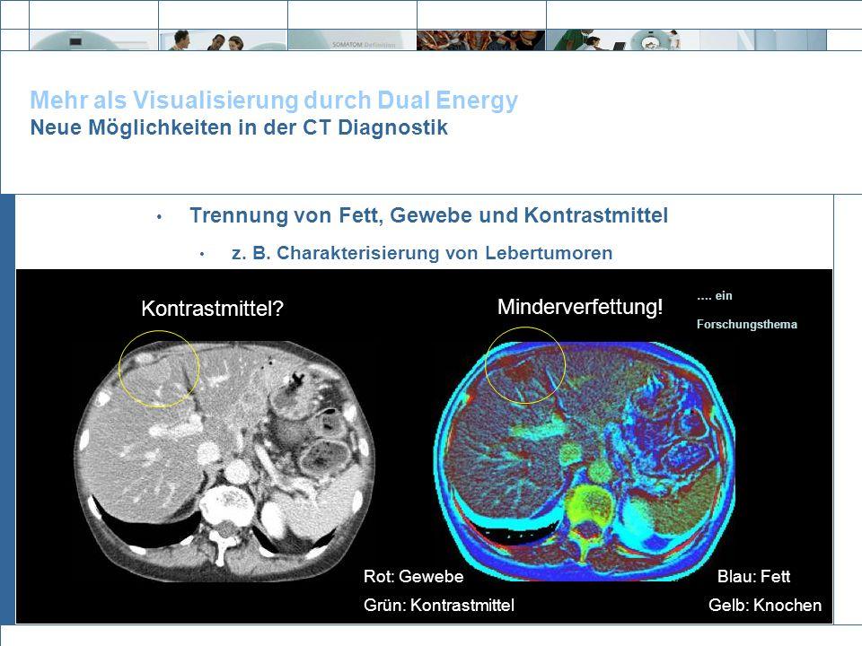 Mehr als Visualisierung durch Dual Energy Neue Möglichkeiten in der CT Diagnostik