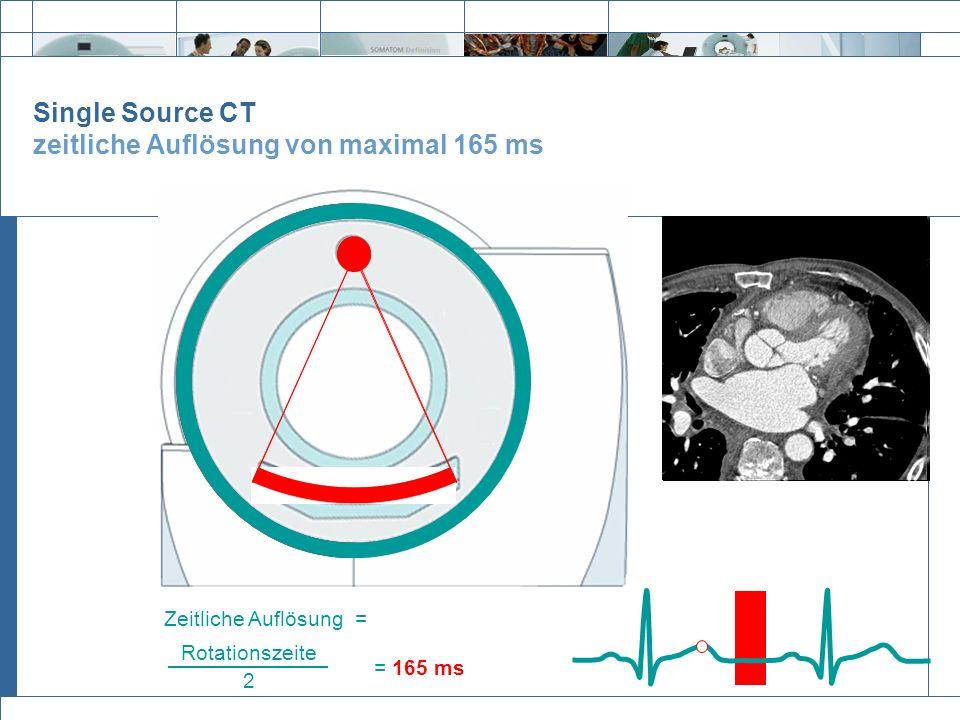 Single Source CT zeitliche Auflösung von maximal 165 ms