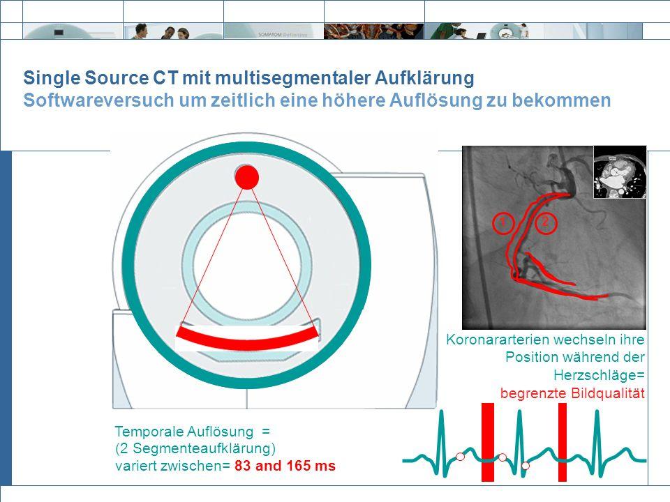 Single Source CT mit multisegmentaler Aufklärung Softwareversuch um zeitlich eine höhere Auflösung zu bekommen