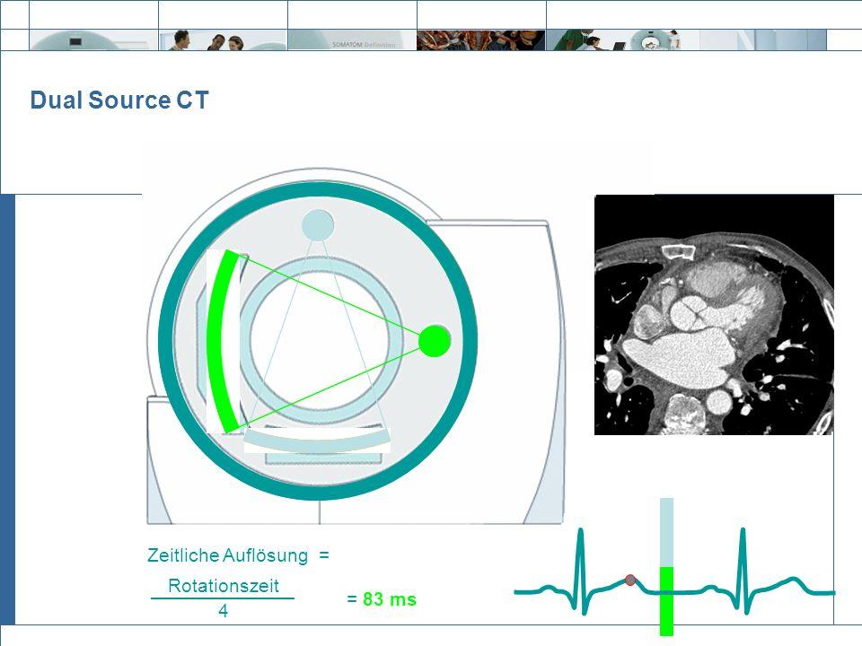 Dual Source CT Zeitliche Auflösung = Rotationszeit 4 = 83 ms