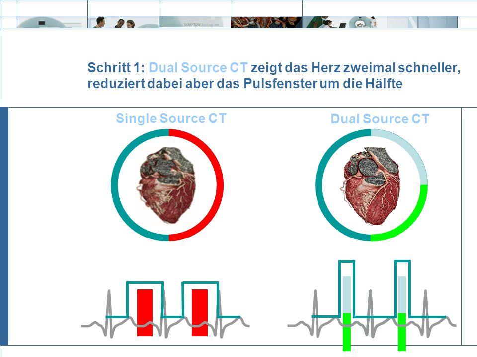 Schritt 1: Dual Source CT zeigt das Herz zweimal schneller, reduziert dabei aber das Pulsfenster um die Hälfte