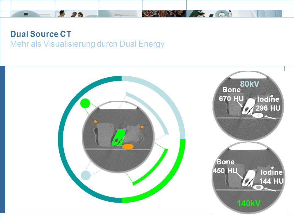 Dual Source CT Mehr als Visualisierung durch Dual Energy