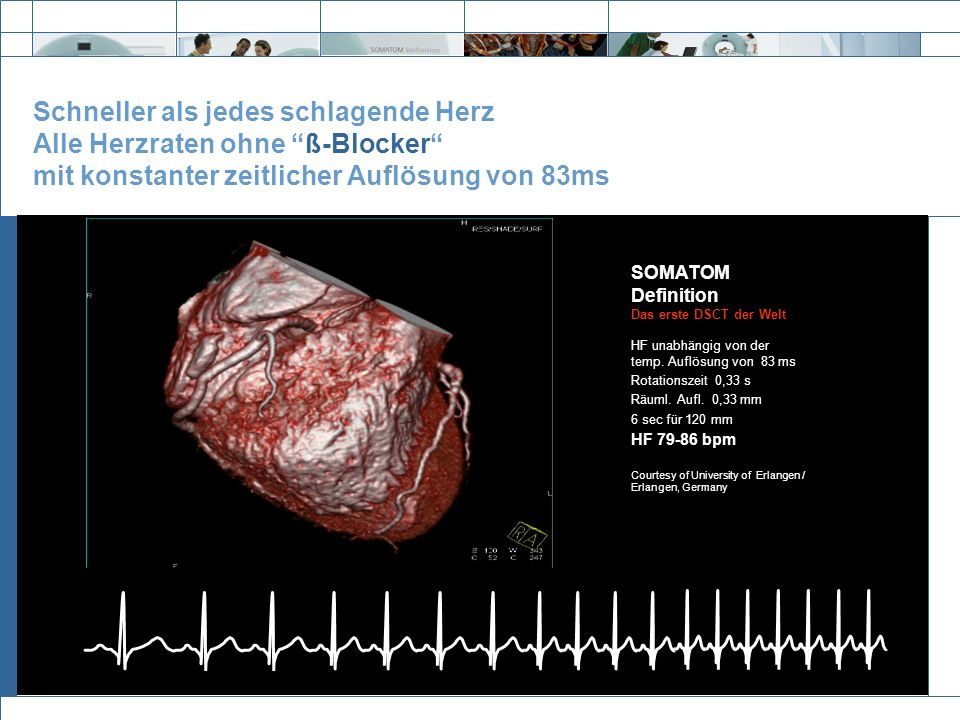 Schneller als jedes schlagende Herz Alle Herzraten ohne ß-Blocker mit konstanter zeitlicher Auflösung von 83ms