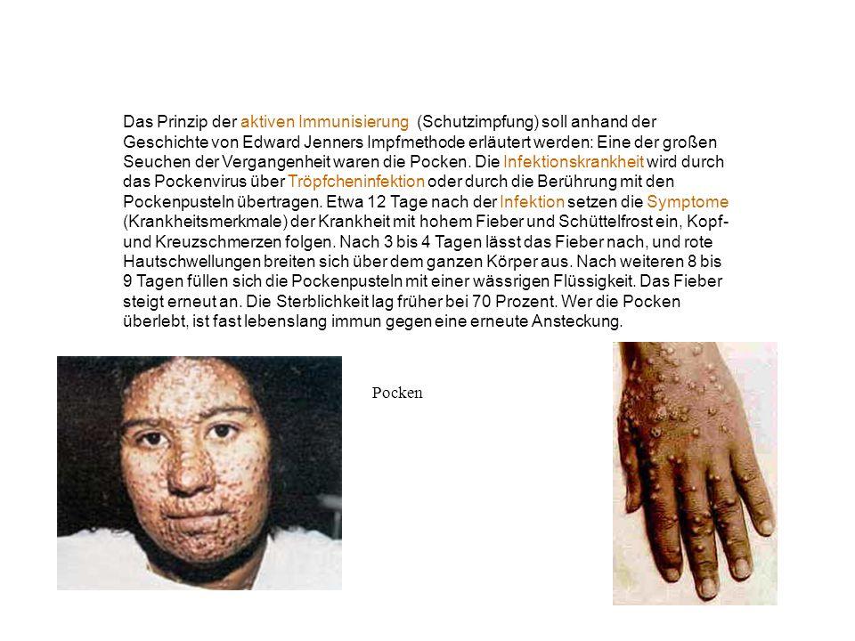 Das Prinzip der aktiven Immunisierung (Schutzimpfung) soll anhand der Geschichte von Edward Jenners Impfmethode erläutert werden: Eine der großen Seuchen der Vergangenheit waren die Pocken. Die Infektionskrankheit wird durch das Pockenvirus über Tröpfcheninfektion oder durch die Berührung mit den Pockenpusteln übertragen. Etwa 12 Tage nach der Infektion setzen die Symptome (Krankheitsmerkmale) der Krankheit mit hohem Fieber und Schüttelfrost ein, Kopf- und Kreuzschmerzen folgen. Nach 3 bis 4 Tagen lässt das Fieber nach, und rote Hautschwellungen breiten sich über dem ganzen Körper aus. Nach weiteren 8 bis 9 Tagen füllen sich die Pockenpusteln mit einer wässrigen Flüssigkeit. Das Fieber steigt erneut an. Die Sterblichkeit lag früher bei 70 Prozent. Wer die Pocken überlebt, ist fast lebenslang immun gegen eine erneute Ansteckung.