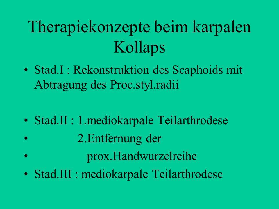 Therapiekonzepte beim karpalen Kollaps