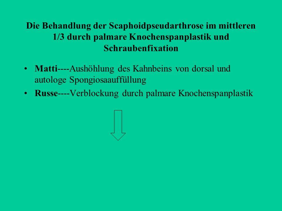 Die Behandlung der Scaphoidpseudarthrose im mittleren 1/3 durch palmare Knochenspanplastik und Schraubenfixation