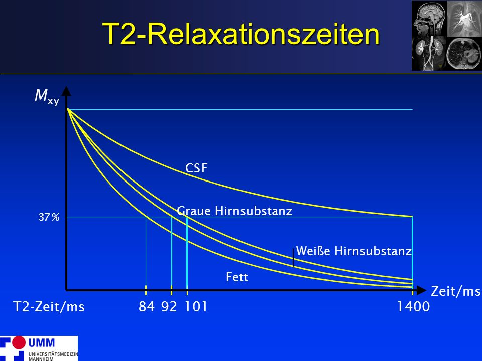 T2-Relaxationszeiten Mxy Zeit/ms T2-Zeit/ms 84 92 101 1400 C S F