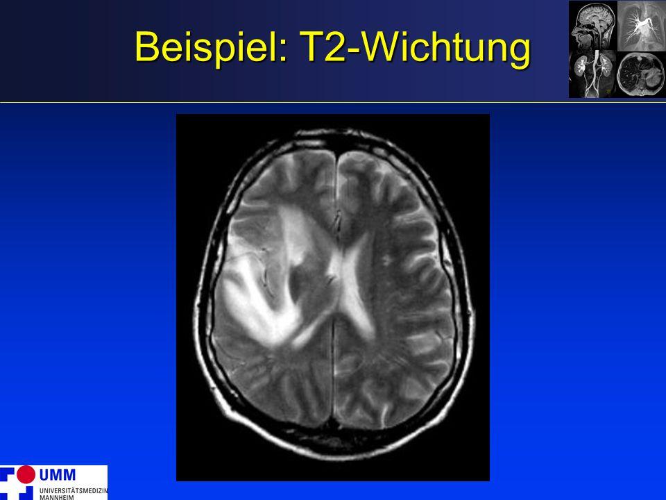 Beispiel: T2-Wichtung