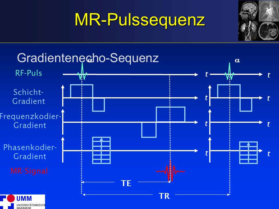 MR-Pulssequenz Gradientenecho-Sequenz a a t RF-Puls t TR Schicht-