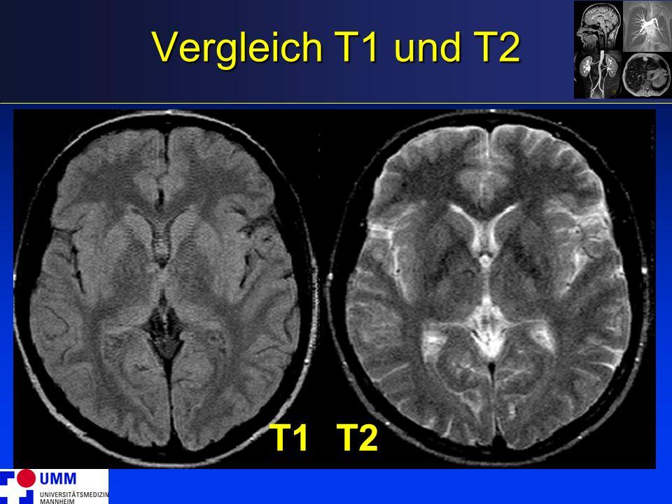 Vergleich T1 und T2 T1 T2