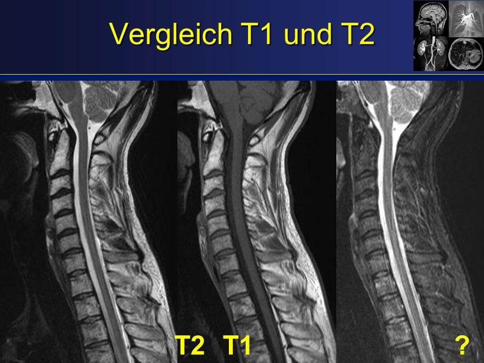 Vergleich T1 und T2 T2 T1