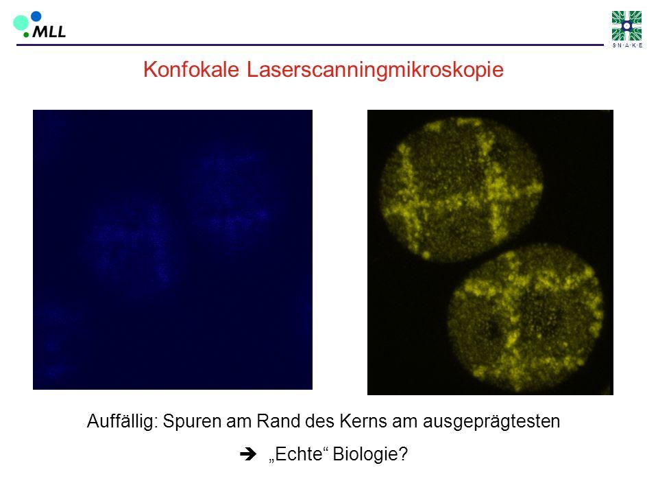 Konfokale Laserscanningmikroskopie