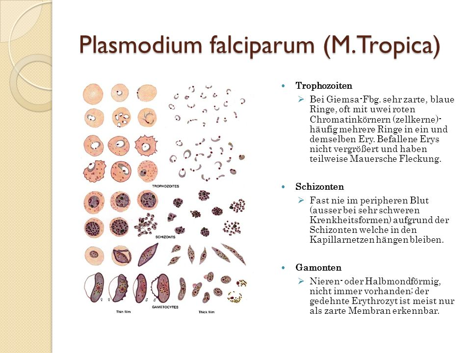 Plasmodium falciparum (M.Tropica)