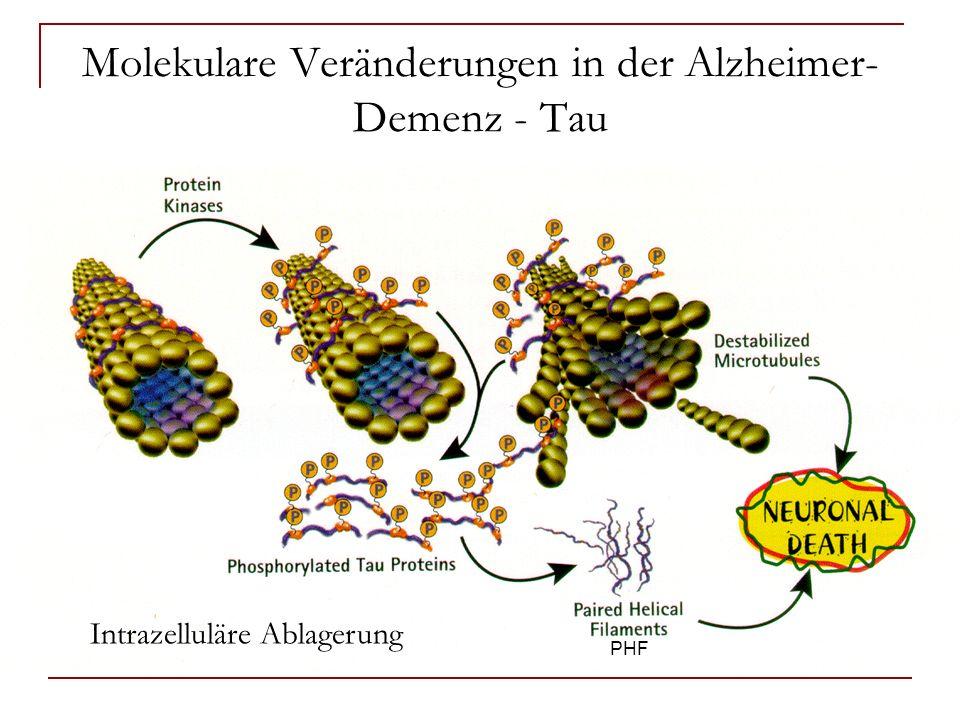 Molekulare Veränderungen in der Alzheimer-Demenz - Tau