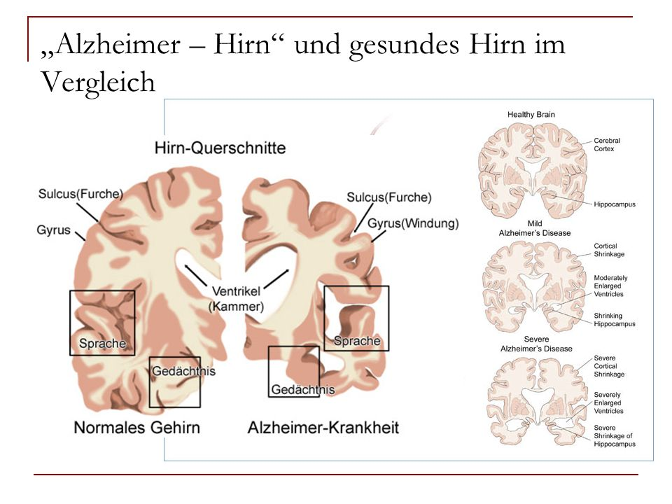 """""""Alzheimer – Hirn und gesundes Hirn im Vergleich"""