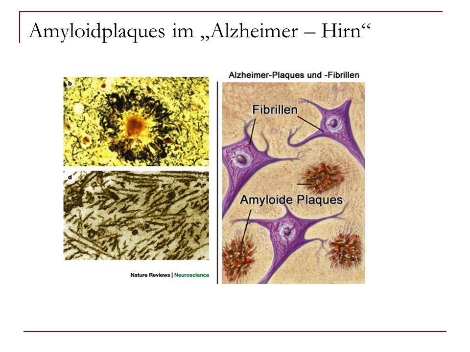 """Amyloidplaques im """"Alzheimer – Hirn"""