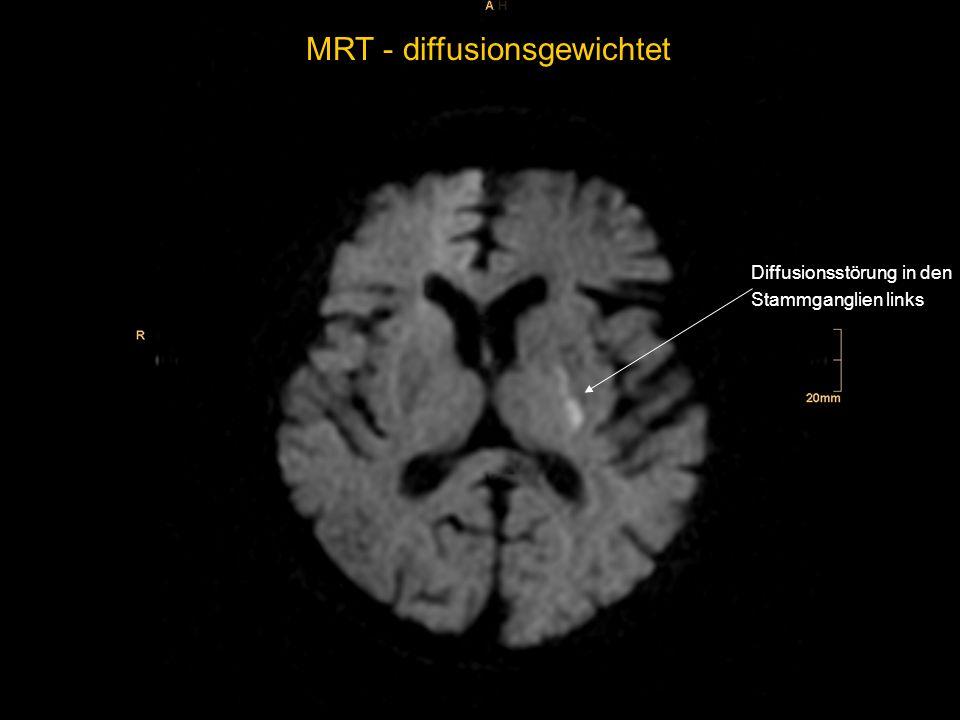 MRT - diffusionsgewichtet