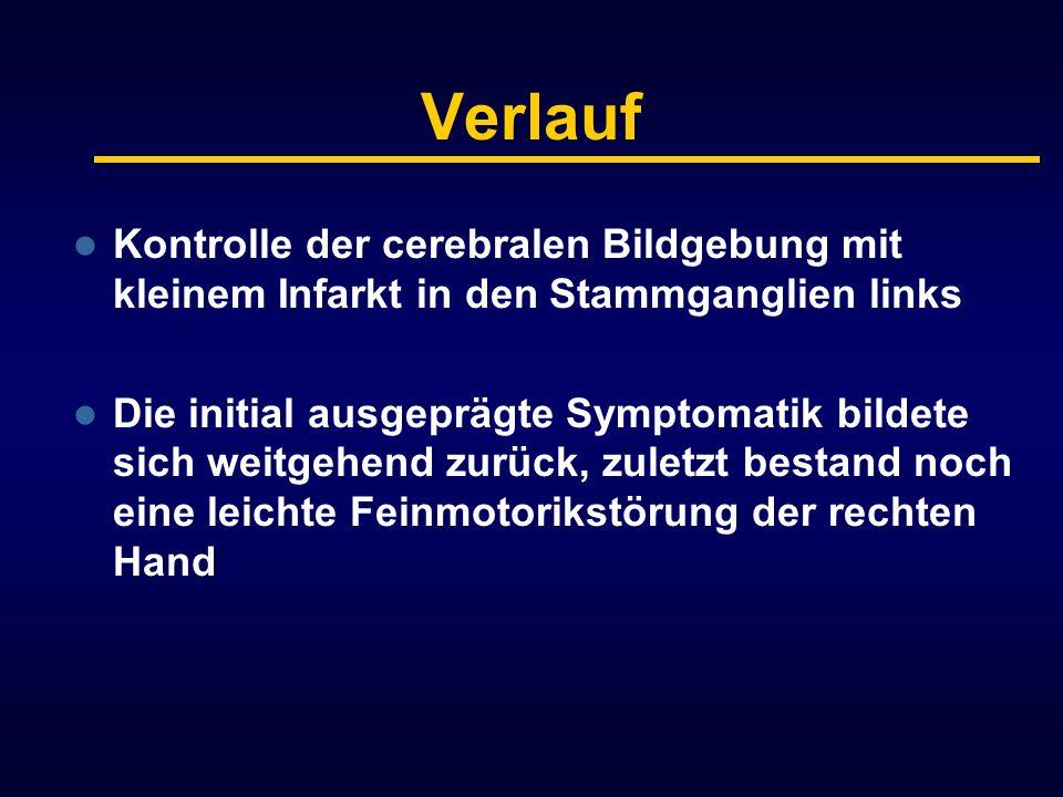 Verlauf Kontrolle der cerebralen Bildgebung mit kleinem Infarkt in den Stammganglien links.