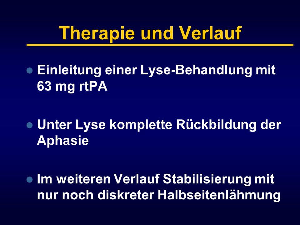 Therapie und Verlauf Einleitung einer Lyse-Behandlung mit 63 mg rtPA