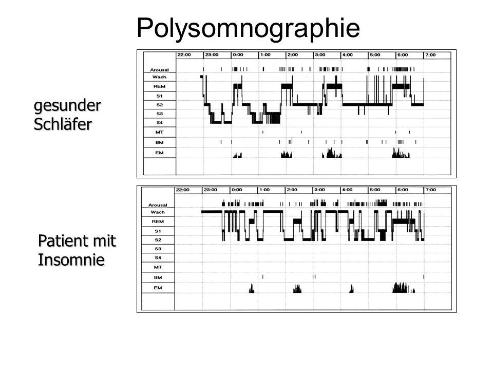 Polysomnographie gesunder Schläfer Patient mit Insomnie