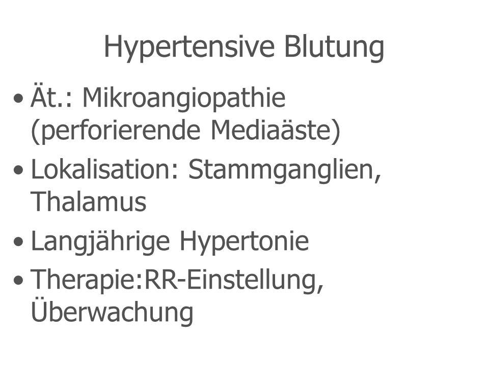 Hypertensive Blutung Ät.: Mikroangiopathie (perforierende Mediaäste)
