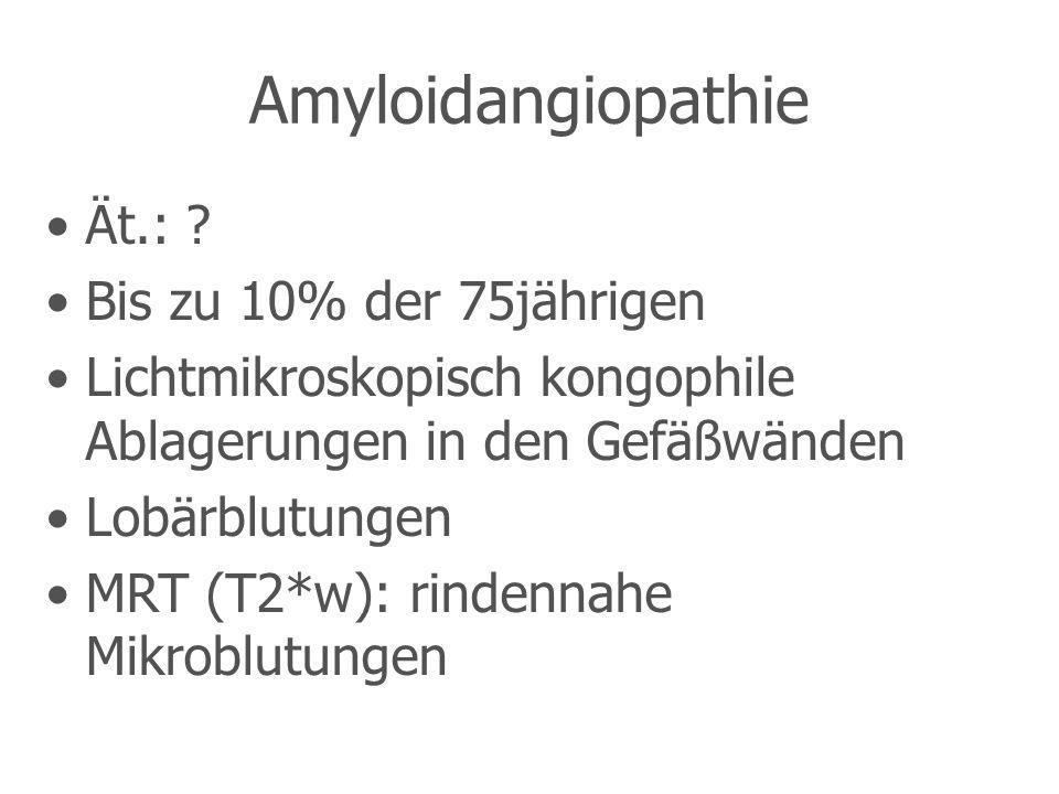 Amyloidangiopathie Ät.: Bis zu 10% der 75jährigen