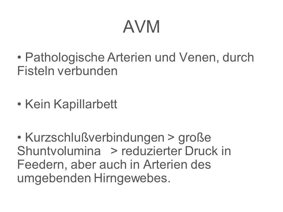 AVM Pathologische Arterien und Venen, durch Fisteln verbunden
