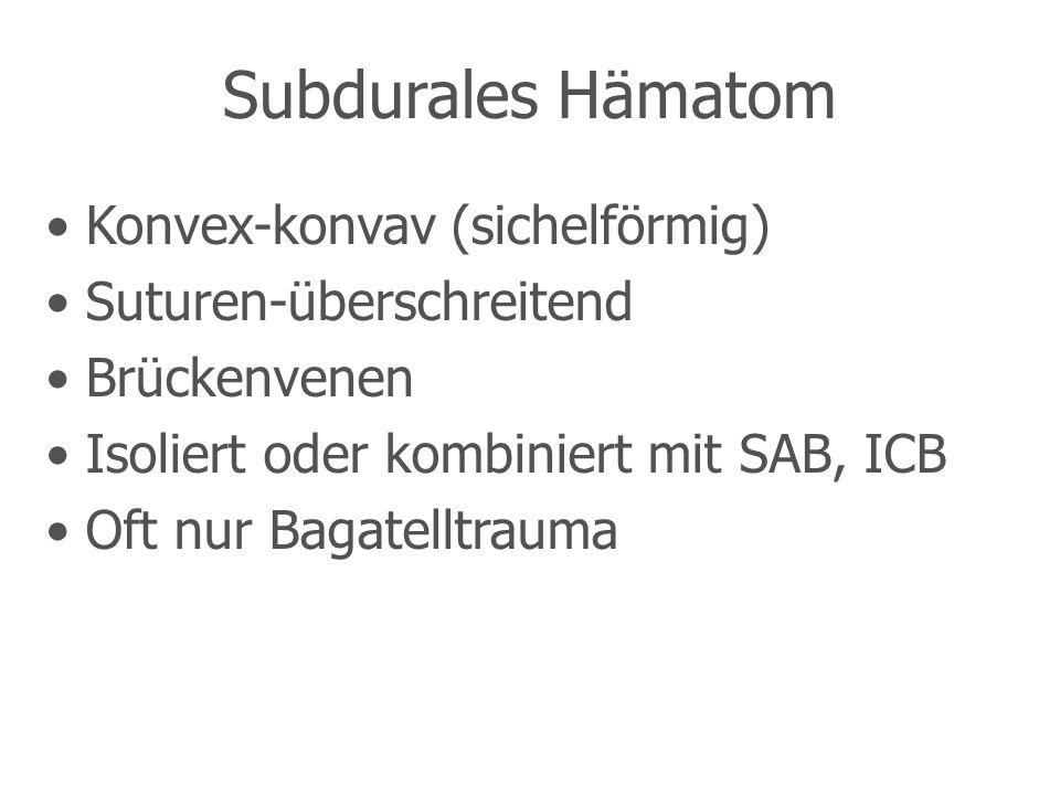 Subdurales Hämatom Konvex-konvav (sichelförmig) Suturen-überschreitend
