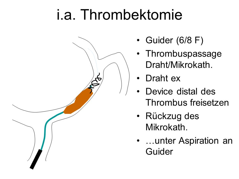 i.a. Thrombektomie Guider (6/8 F) Thrombuspassage Draht/Mikrokath.