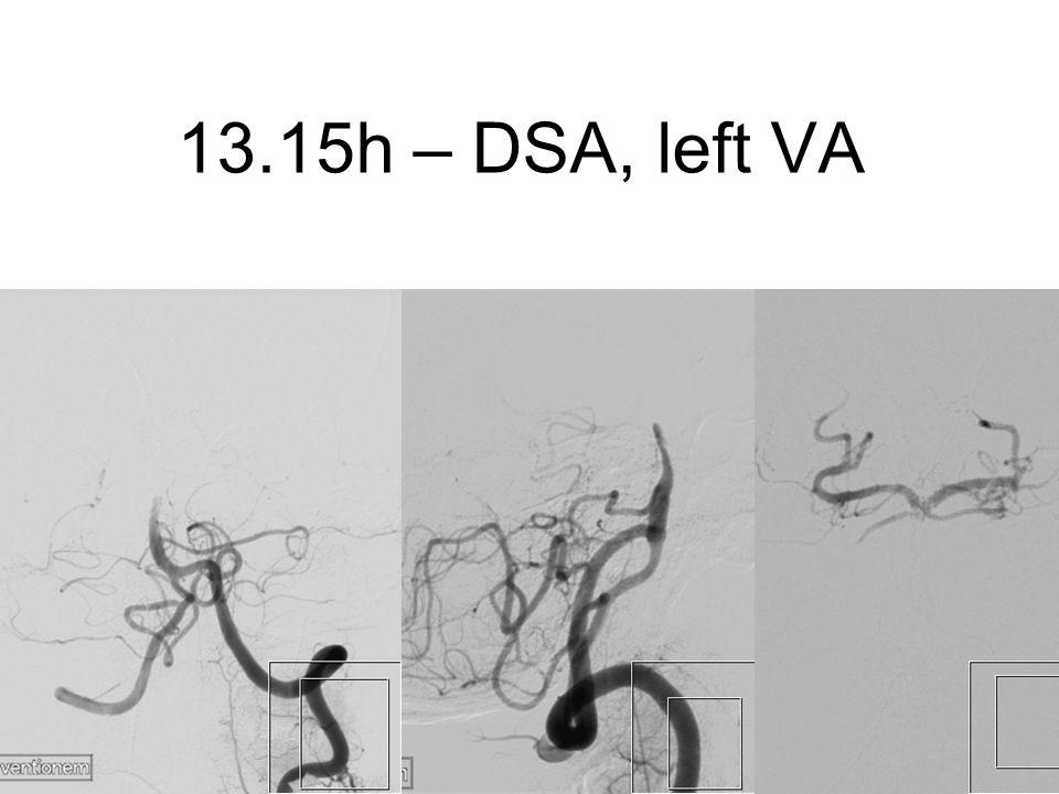 13.15h – DSA, left VA