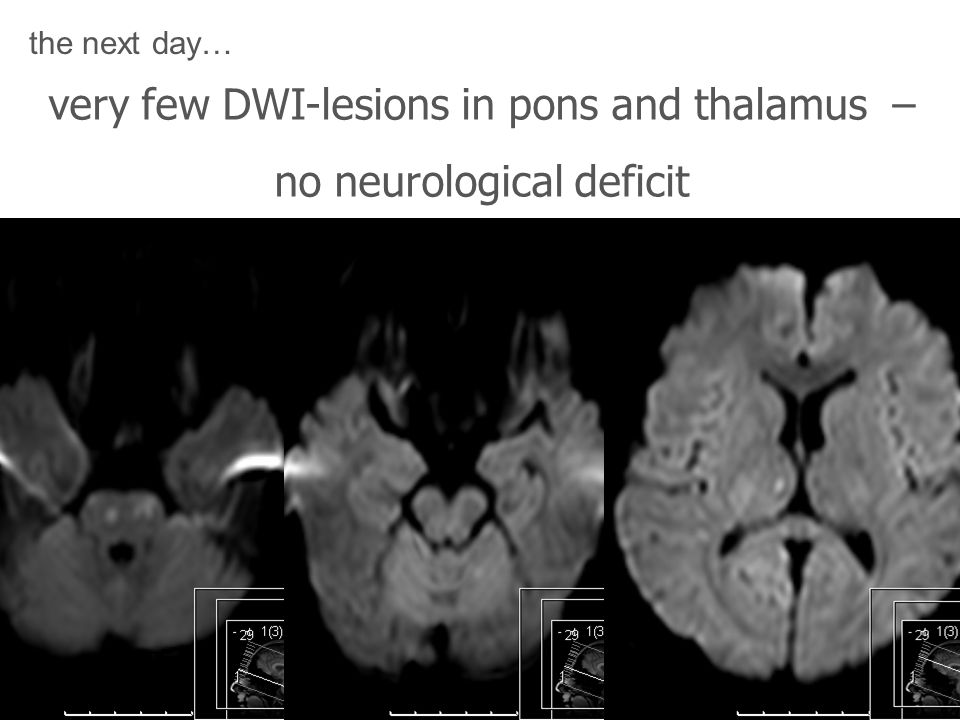 very few DWI-lesions in pons and thalamus – no neurological deficit