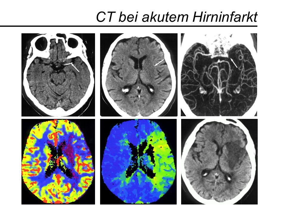 CT bei akutem Hirninfarkt
