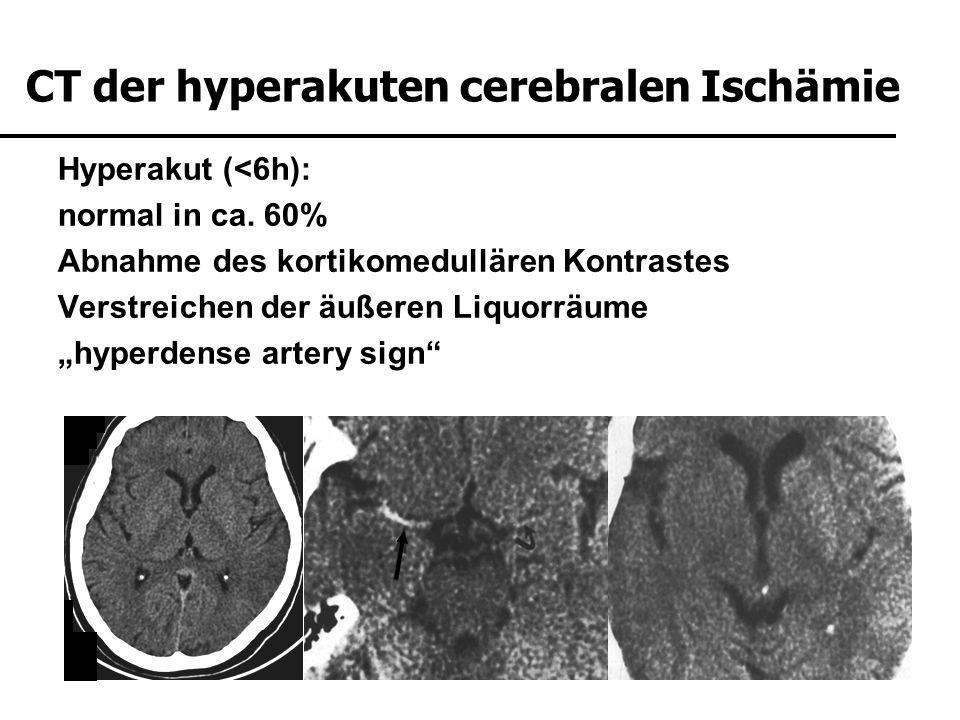 CT der hyperakuten cerebralen Ischämie